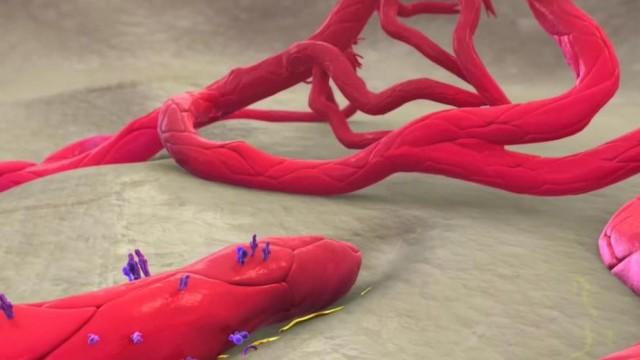 Angiogenesis_videobol3